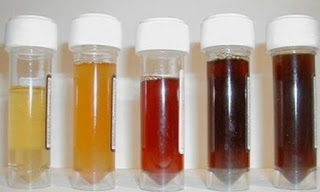 Các loại màu của nước tiểu (đái)